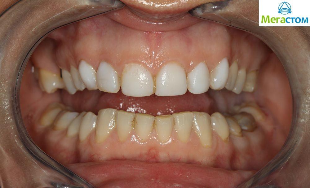 можно ли исправить зубы винирами
