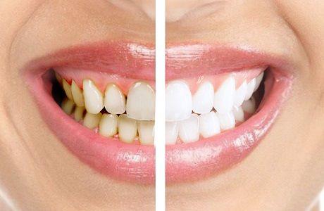 Что включает в себя профессиональная гигиена полости рта | Мегастом - сеть клиник