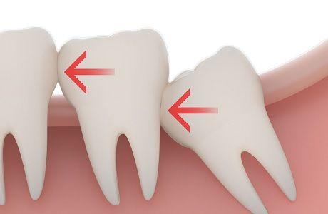 Зубы мудрости когда растут, зуб мудрости во сколько лет появляется