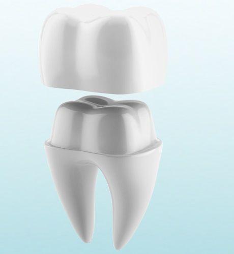 коронка, установка коронок на передние зубы фото